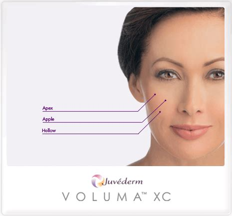 aging botox treatment picture 14