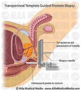 Prostate biopsy info picture 3
