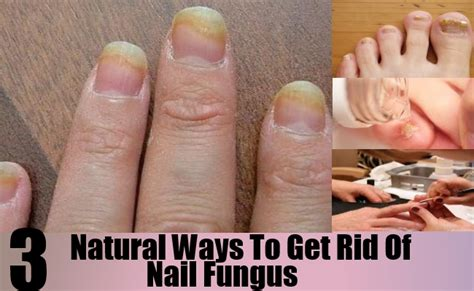 i got rid of nail fungus by picture 10