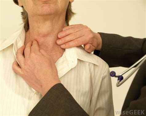 can thyroid nodules can heart palpatations picture 8