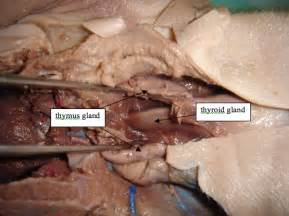 enlarged thyroid and swollen glands picture 11