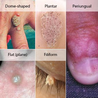 spread common warts picture 14