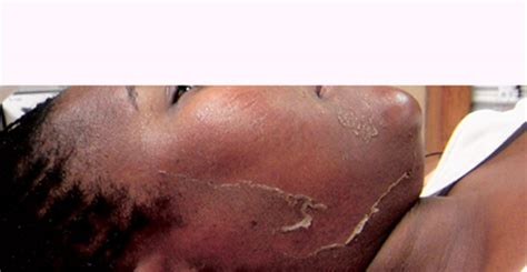 african american skin microdermabrasion picture 14