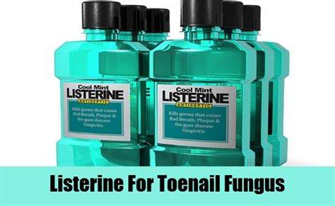 nail fungus and listerine picture 13