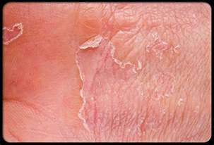feet skin problems picture 6
