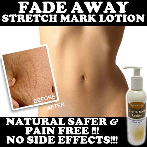 fade away stretch mark cream picture 1