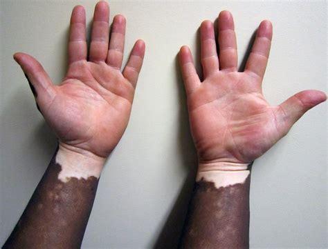 can thyroid cause vitiligo picture 10