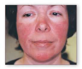 acne treatments drugs picture 10