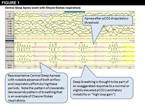 central sleep apnea picture 7