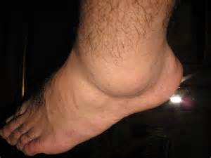 no appee weight loss swollen foot are symptoms of picture 15