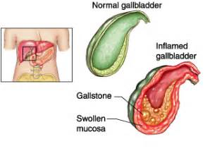 gall bladder symptoms after use of drug picture 11