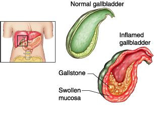 symptoms liver cancer picture 10