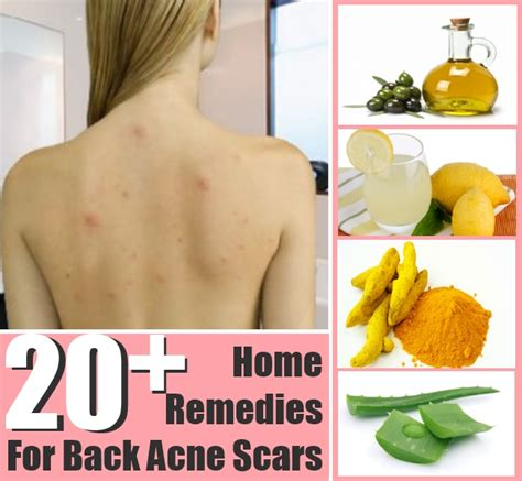 home remedies for acne scarring picture 3