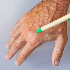 chronic fever low grade and swollen finger joints picture 2