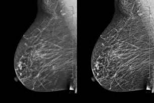 breast enhancement 3d picture 3