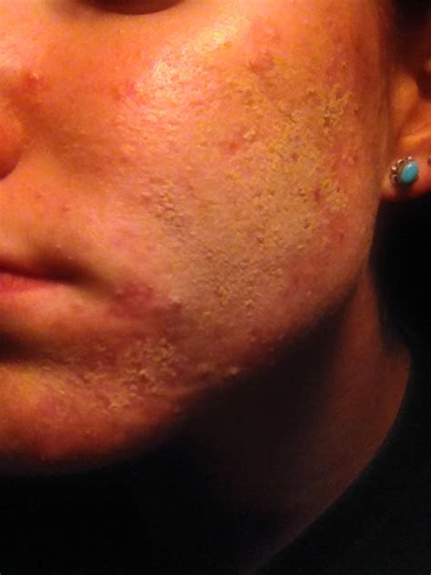 acne and cravings picture 3