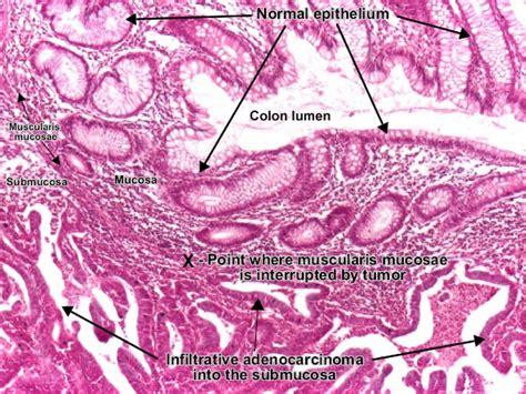 adenoma and adenocarcinoma of colon different pathology picture 4
