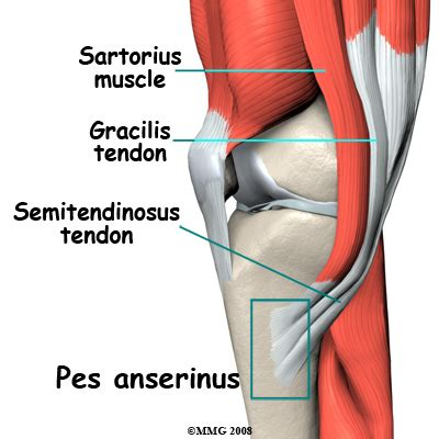 knee pain picture 3