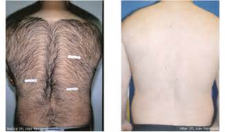 cost for a men hair removal picture 7
