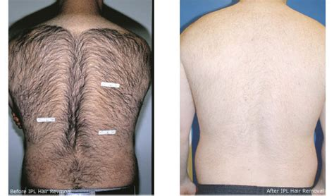 laser hair removal new york picture 1