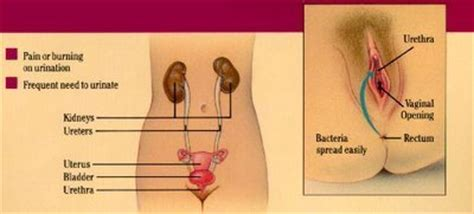 sex ok during bladder infection picture 15