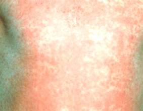 hives and fever picture 5