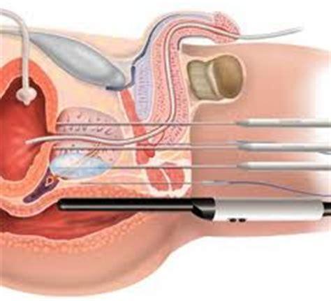 prostate milking procedure picture 6