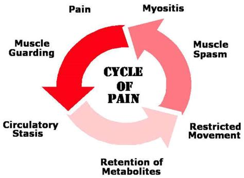 muscle 20pain picture 1