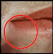 picture stages of herpes around mouth picture 11