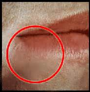 beginging stages of oral herpes pictures picture 1