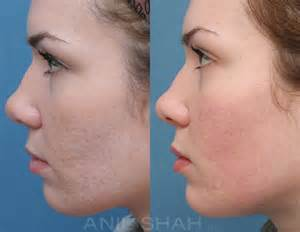 treatment of discoloration from acne picture 7