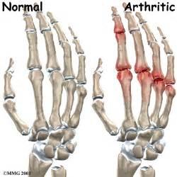 degenerative joint arthritis picture 1