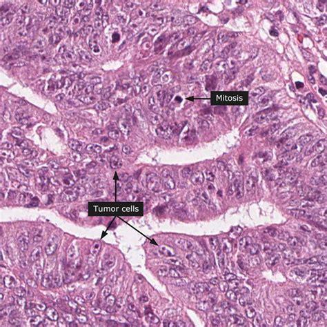Colon cancer outcome picture 3