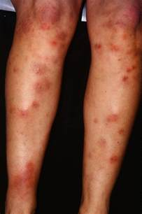 what causes acne on the arms picture 13