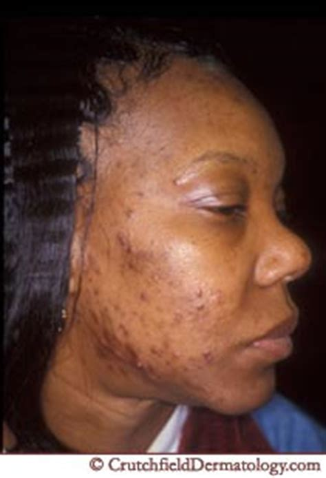 african american girl looking for acne treatment creams picture 8