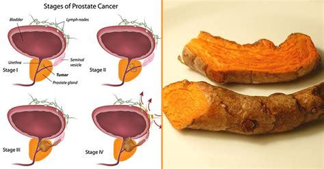 what can agravate prostate foods picture 5