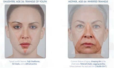 ageing botox treatment picture 5