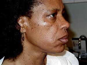 black skin dermatologist nyc picture 19