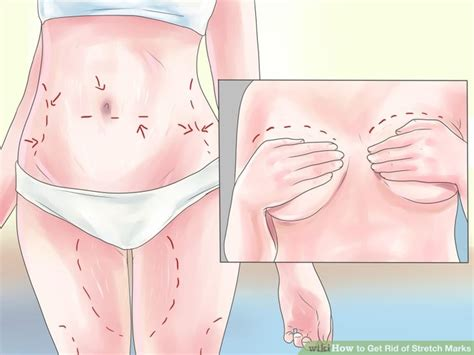 can a tummy tuck get rid of stretch marks picture 7