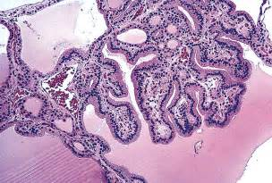 colloid and follicular cells in thyroid picture 7