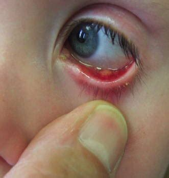 bacterial eye infections picture 1