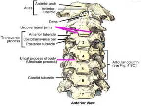 degenerative uncovetebral joint changes picture 17