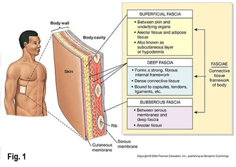 pain in joints picture 6
