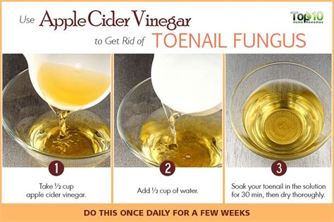 white or cider vinegar for toenail fungus?? picture 3