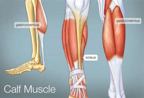 calve muscle tear picture 9