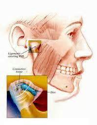 can wisdom teeth cause sinus proems picture 2