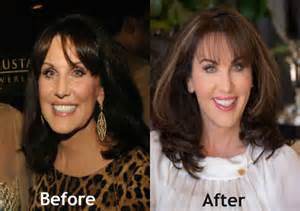has robin mcgraw lost a lot of weight picture 5