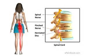 chronic pain in the hip joint picture 9