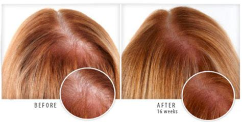 genf20 hair loss picture 6