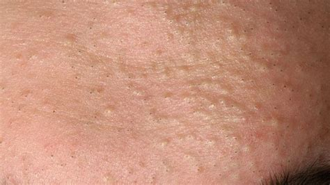 cysts in the skin picture 9